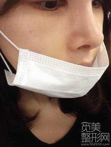 韩式三点双眼皮开外眼角恢复过程图