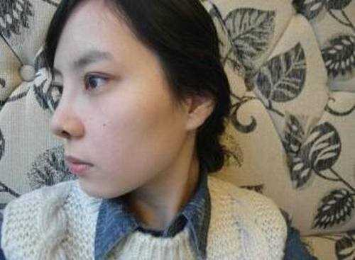 韩式三点双眼皮+5mm硅胶隆鼻整形手术效果图