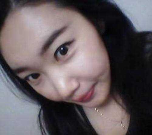韩式三点双眼皮+开外眼角整形手术6个月后记