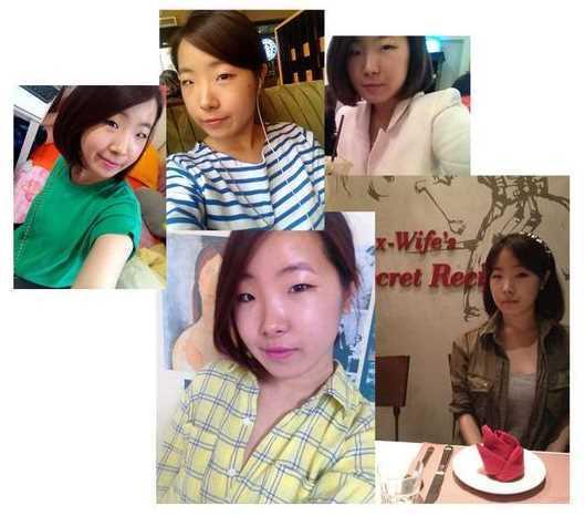 韩式三点双眼皮+开眼角手术后日记